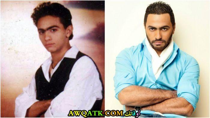 تامر حسني قبل و بعد الشهرة