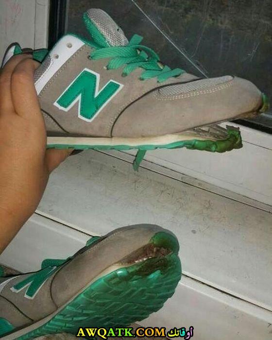 احتراق حذاء