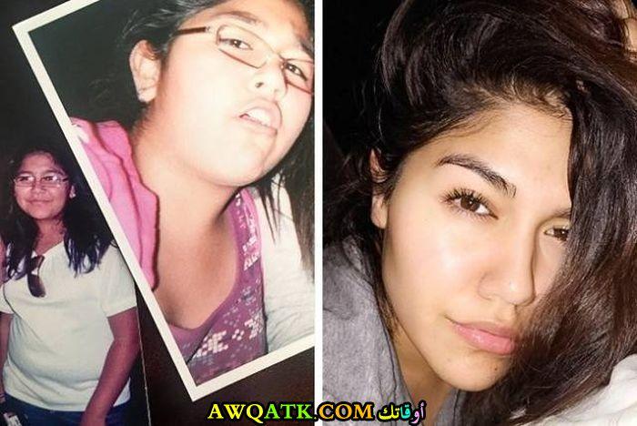 قبل وبعد التجميل